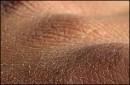 علت خشک شدن پوست در پاییز