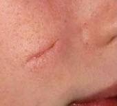 درمان اسکار پوست (علامت زخم)