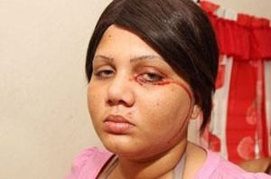 این دختر جوان به بیماری خونین دچار شده است (عکس)
