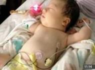 نوزادان واقعی که لقب ارواح گرفتند +عکس