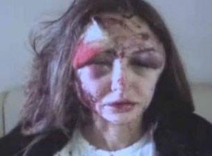 مدل زیبای روسی مورد ضرب و شتم قرار گرفت (عکس)